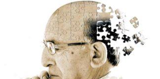 Alzheimer occhiali 3d
