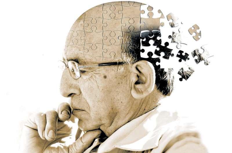 Alzheimer, occhiali 3D per la diagnosi