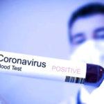 Coronavirus, nuovi tamponi eseguiti oggi: 40 casi risultano positivi