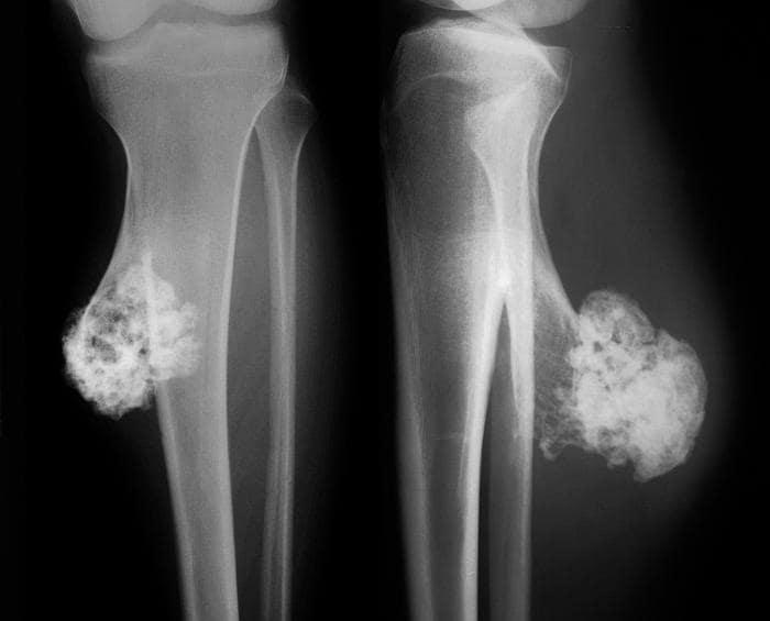 Intelligenza artificiale per la diagnosi del tumore osseo: lo studio Federico II, Irccs Galeazzi e Università di Milano