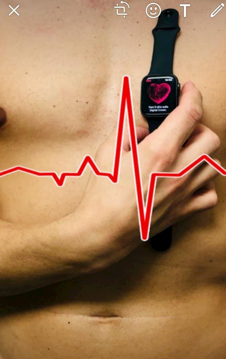 Arriva lo smartwatch che riconosce l'infarto