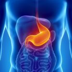 Tumore allo stomaco, per la prima volta cala la mortalità Ma il 20% dei pazienti non sopravvive per malnutrizione